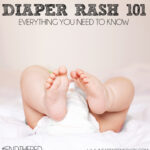 Diaper Rash 101 – Everything You Need To Know